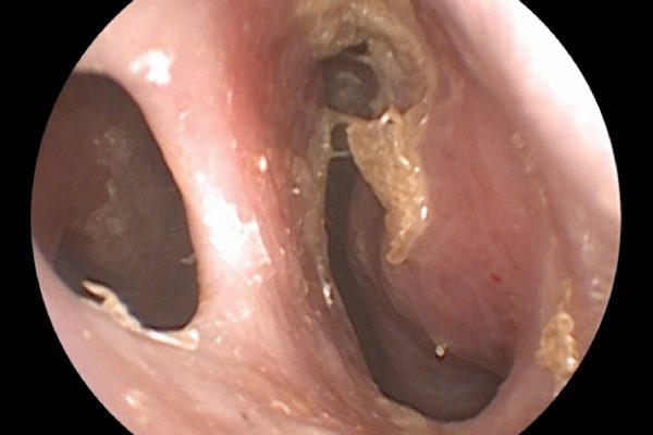 Atrofik Rinit, nazal septum perforasyonu,